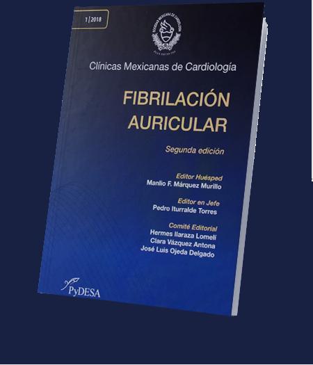Fibrilación Auricular Segunda Edición